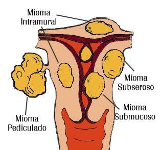 Miomas